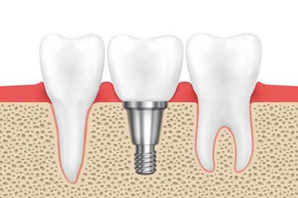 Kāpēc implants tiek noraidīts? Galvenie iemesli